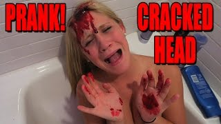 Download CRACKED OPEN HEAD PRANK! - SCARE PRANK Video