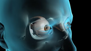 Download Glaucoma Surgery Video