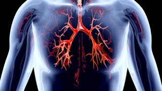 Download How to Remove Calcium Deposits From Arteries - Clogged Arteries Home Remedies Video