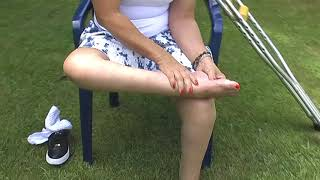 Download rayans barefoot polio ( polio feet, polio legs, crutch walking Video
