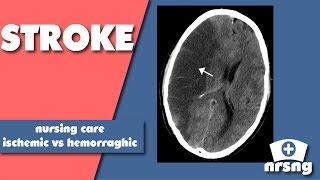 Download Stroke Nursing Care Video