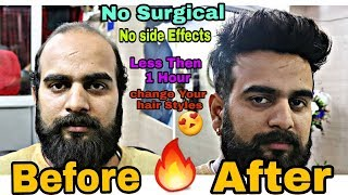 Download Before & After //Non Surgical Hair Replacement System for Men change your hair In less then 1 hour Video