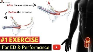 Download 🤷🏼♂️ #1 Exercise For Preventing Erectile Dysfunction & Improving Your Performance In The Bedroom Video