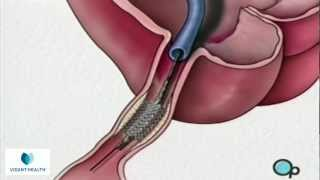 Download Stent Implantation Coronary Angioplasty Vidant PreOp® Patient Education Video