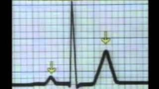 Download Learning ECG - DRUGS and ELECTROLYTES Video
