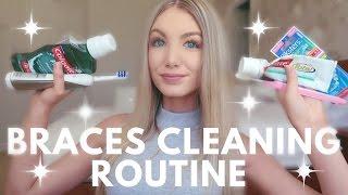 Download Braces Cleaning Routine | Water Flosser, Keeping Teeth White, Brushing etc. Video
