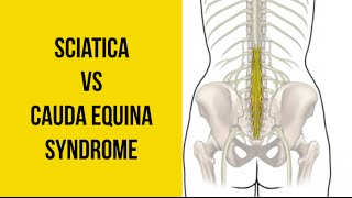 Download Sciatica vs Cauda Equina Syndrome (MEDICAL EMERGENCY!) Video