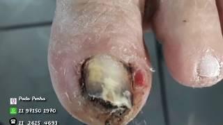 Download Bicho de Pé ( Tunga Penetrans) Podologia Podo Penha Video