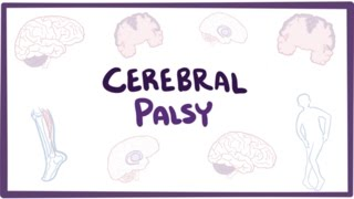 Download Cerebral palsy (CP) - causes, symptoms, diagnosis, treatment & pathology Video