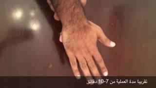 Download طريقة سهلة لستخراج شوك من اليد Video