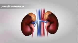 Download فيلم مرض السكري جامعة الأمير سلمان Video