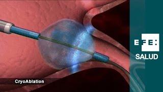 Download ¿Qué es un catéter cardíaco? Video