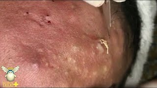 Download Extraction Of Cystic Acne, Pimples And Blackheads On Face Acne Treatment 271001! Video