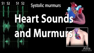 Download Heart Sounds and Heart Murmurs, Animation. Video