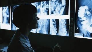 Download Как работает рентгеновский аппарат Video