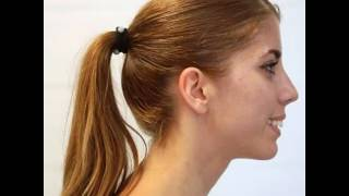 Download Young woman, mouth breather, TMJ pain, pain in neck and lower back Video