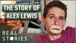 Download The Extraordinary Case of Alex Lewis (Medical Miracle Documentary) - Real Stories Video