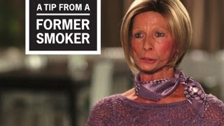 Download CDC: Tips From Former Smokers - Terrie: ″Terrie, What Are You Doing?″ Video