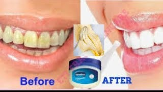 Download WHITEN YOUR YELLOW TEETH AT HOME USING THIS SIMPLE HOME REMEDY IN ONLY 2 MINUTES Video