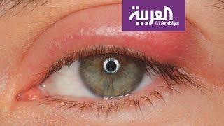Download صباح العربية: مشاركة الماسكارا وقلم الكحل خطر على صحة العين Video