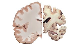 Download Alzheimer's and the Brain Video