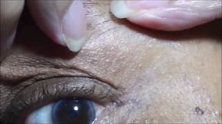Download Skin Tag Removal with Apple Cider Vinegar 2017 Video