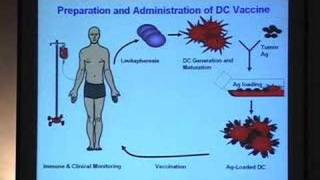 Download Using Dendritic Cells to Create Cancer Vaccines Video