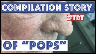 Download ″Pops″ and his BEST blackhead extractions - TBT Video