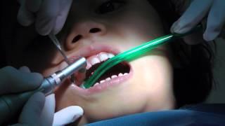 Download 1st Dentist Visit after Drill & Filling: Kid Loves Singing Dentist Video