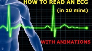 Download HOW TO READ AN ECG!! WITH ANIMATIONS(in 10 mins)!! Video
