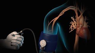 Download High Blood Pressure | Hypertension | Nucleus Health Video