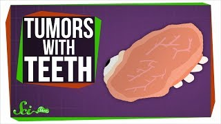 Download Teratomas: What Tumors with Teeth Can Teach Us About Stem Cells Video