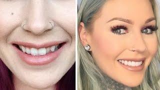 Download NEW TEETH: Veneers & How I Transformed My Teeth | KristenLeanneStyle Video