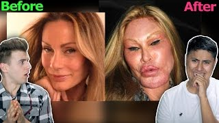 Download The Worst Plastic Surgery Fails Video