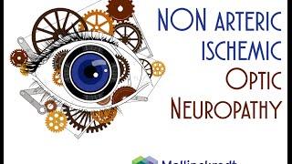Download Non Arteritic and Arteritic Ischemic Optic Neuropathy Video