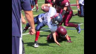 Download Elementary School Kid breaks Arm In Football - See and hear it! Video