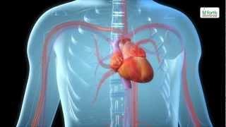 Download Angioplasty Procedure Animation Video. Video