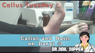 Download He's Such a Character!! - Callus and Nails with Daryl #31 - Callus Tuesday Video