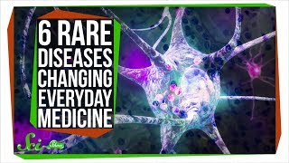 Download How 6 Rare Diseases Are Changing Everyday Medicine Video