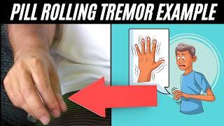 Download Pill rolling tremor - Parkinson's Disease Video