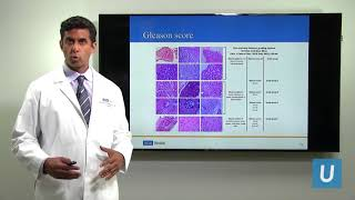 Download Making Decisions After Being Diagnosed with Early Stage Prostate Cancer | UCLAMDCHAT Webinar Video