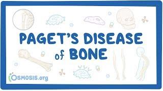 Download Paget's disease of bone Video