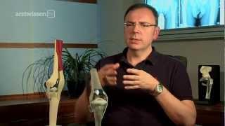 Download Knieprothese - welche ist die Richtige für mich? (arztwissen.tv / Knie & Hüfte) Video