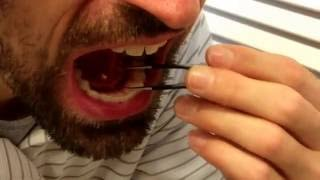 Download Removing my own salivary gland stone Video