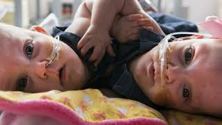 Download Doctors separate 13-month-old twins joined at heart Video