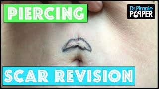 Download Scar Revision after a Bad Belly Button Piercing Video
