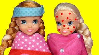Download Toddler is SICK ! Elsa & Anna - CHICKENPOX - The other PRETENDS ? Who's really sick ? Doctor Barbie Video