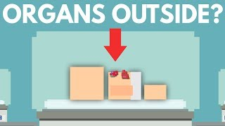 Download What Happens When Organs Grow Outside Your Body? Video