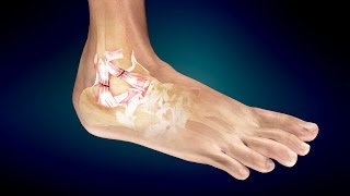 Download Treatment for Ankle Sprain or Twisted Ankle Video