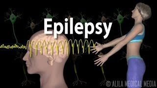 Download Epilepsy, Animation. Video